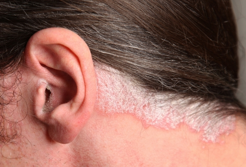 Зверобойное масло при атопическом дерматите