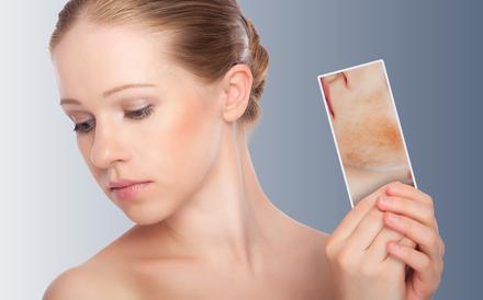 Себорейный дерматит, лечение