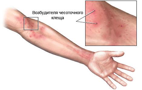 кожные заболевания чесотка