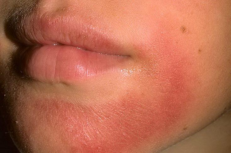 Контактный дерматит на лице у ребенка фото