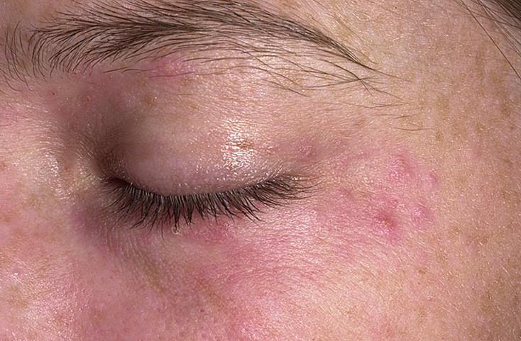 Перианальный дерматит — Аллергия