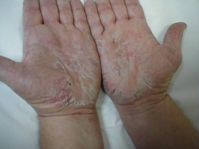 Как лечить экзему на ногах мази
