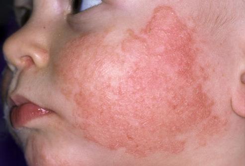 В каких клиниках лечат детский атопический дерматит