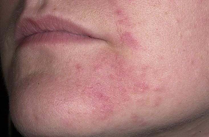 фото дерматит кожи